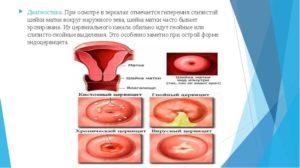 Коричневые выделения после осмотра шейки матки при беременности