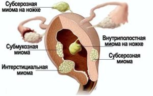 Интерстициальный узел по передней стенке матки при беременности