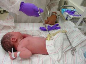 Как обрезают пуповину новорожденному