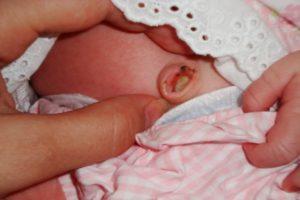 Почему долго не отпадает пуповина у новорожденного