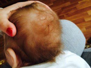 У ребенка вытерлись волосы на затылке
