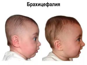 Брахицефалическая форма головы у ребенка