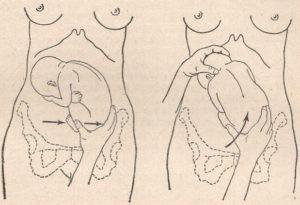 Упражнения для переворота плода в головное предлежание