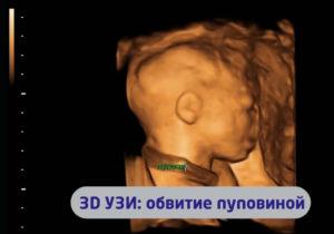 Однократное обвитие пуповиной на 32 неделе беременности