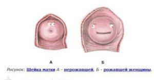 Каких размеров должна быть матка после родов