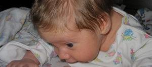 Ребенок потеет голова когда кушает
