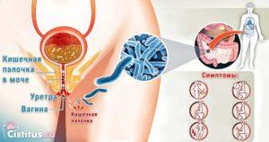Кишечная палочка в моче при беременности чем опасна