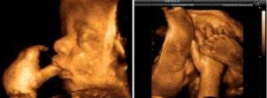 41 неделя беременности а роды не начинаются форум