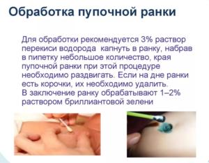 Обработка пуповины новорожденного алгоритм