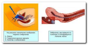 Месячные после подсадки эмбриона