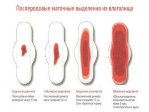 Сколько дней после родов идут кровяные выделения форум