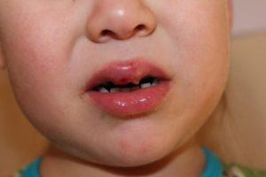 Грудничок разбил губу что делать