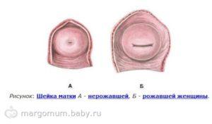 После родов матка щелевидная