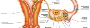 Боли при имплантации эмбриона