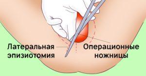 Как облегчить боль после эпизиотомии