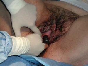 Через сколько дней после родов нужно посетить гинеколога