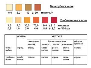 Билирубин нормы в моче