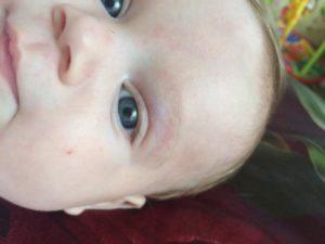 Гематома на глазу у новорожденного