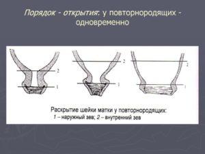 Раскрытие шейки матки на 2 пальца у повторнородящих