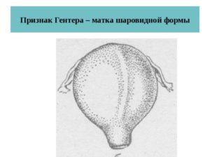При беременности матка шаровидная