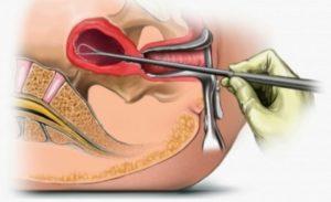 Выскабливание полости матки после родов
