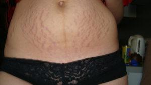 Контрактубекс во время беременности