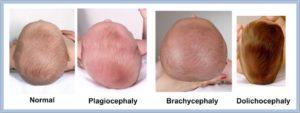 Форма головы у новорожденных вытянутая