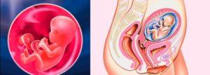 Признаки замершей беременности на 16 неделе беременности