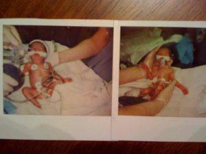 27 недель двойня беременность