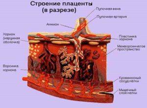 Структура плаценты неоднородная за счет расширения мвп
