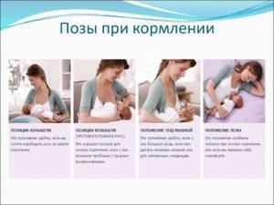 При лактостазе как прикладывать ребенка