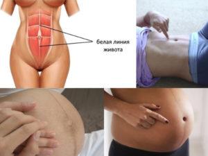 При беременности на животе нет полоски