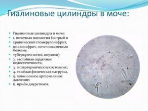 Патологические цилиндры в моче