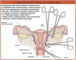 Згт после удаления матки и яичников названия препаратов