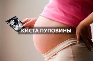 Киста пуповины при беременности