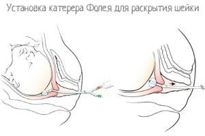 Стимуляция родов с помощью геля