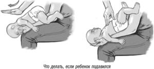 Что делать если грудной ребенок подавился