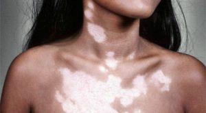 Нарушение пигментации кожи у детей