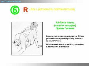 Коленно локтевое положение при беременности для чего назначают