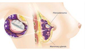 Когда можно беременеть после удаления фиброаденомы молочной железы