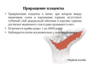 Консервативное лечение приращения плаценты