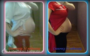 Как определить пол ребенка по форме живота матери