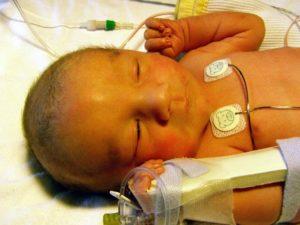 Передается ли желтуха у новорожденных