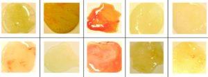 Какого цвета мокрота при туберкулезе