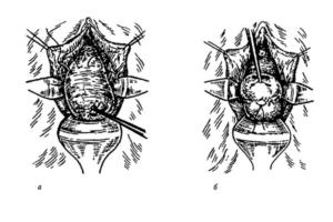 Швы на шейке матки при беременности образ жизни