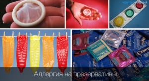 Аллергия на презерватив как проявляется