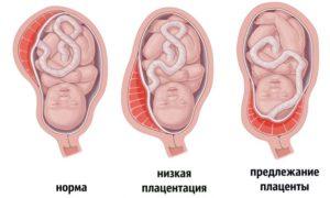 Низкая плацентация при беременности 22 неделя что делать