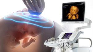 Вредно ли частое узи при беременности для ребенка