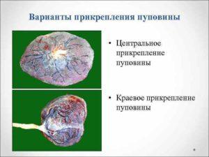 Краевое прикрепление пуповины к плаценте чем грозит