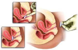 Как вести себя после установки пессария при беременности
